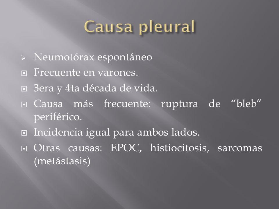 Causa pleural Neumotórax espontáneo Frecuente en varones.