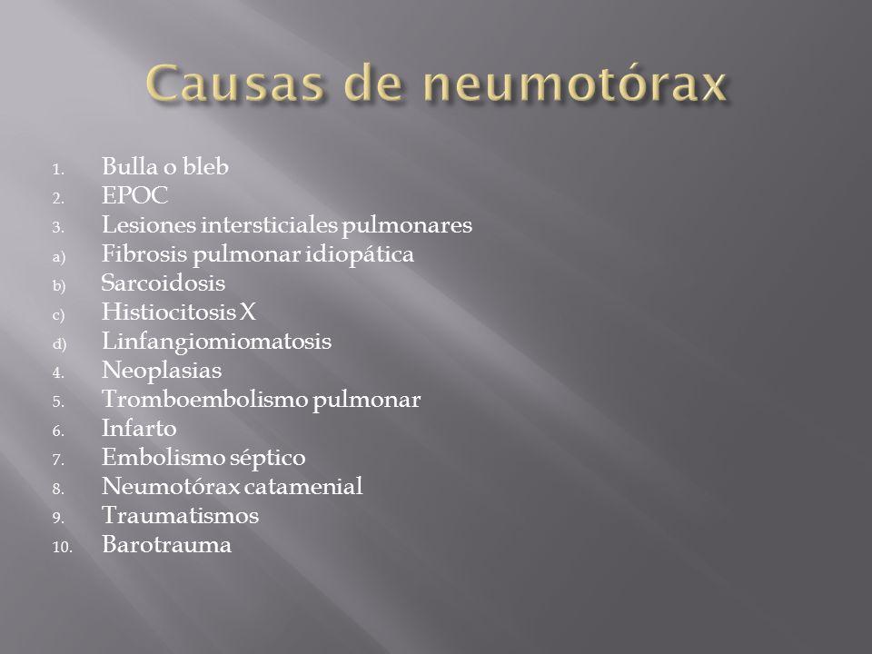 Causas de neumotórax Bulla o bleb EPOC