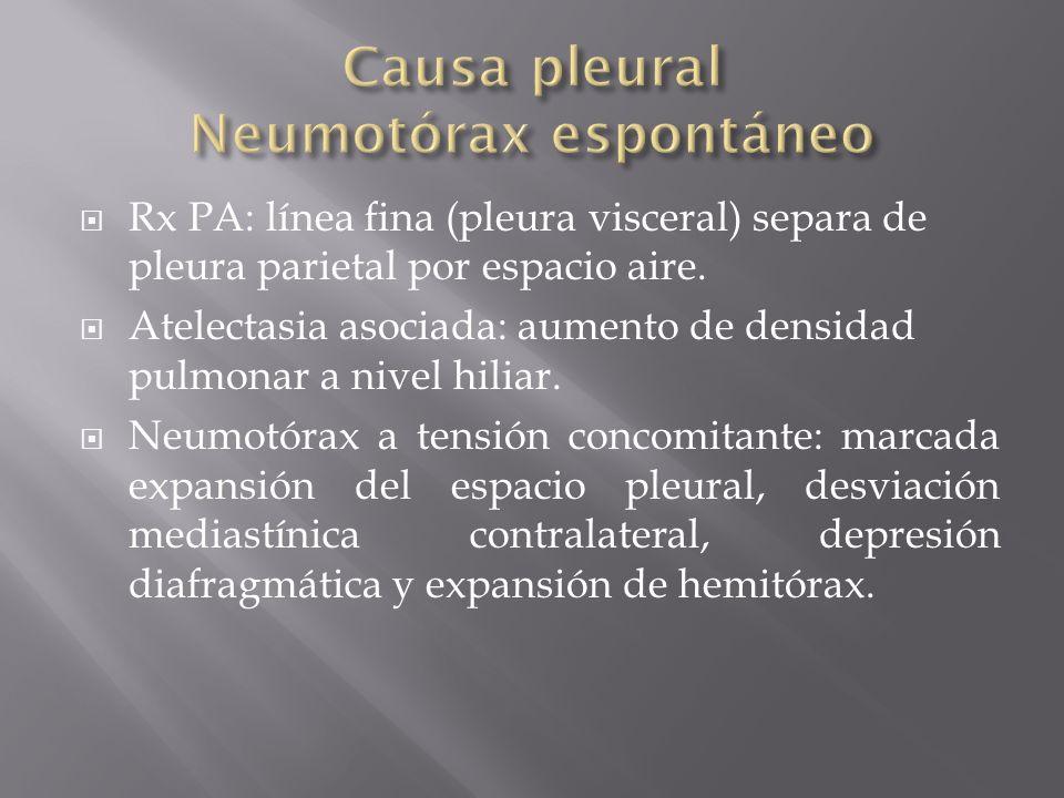 Causa pleural Neumotórax espontáneo