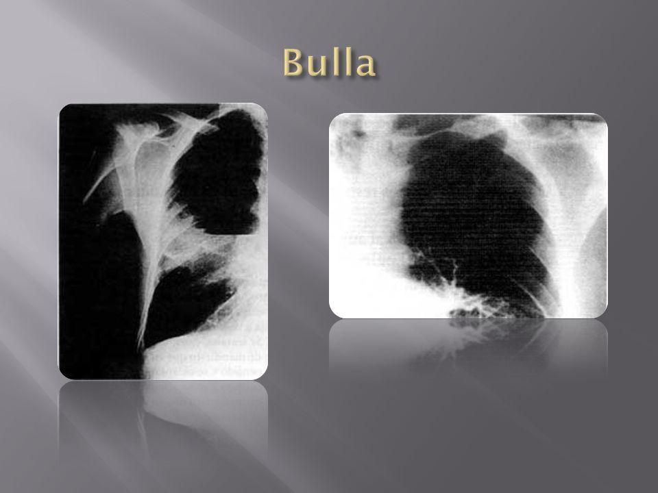 Bulla