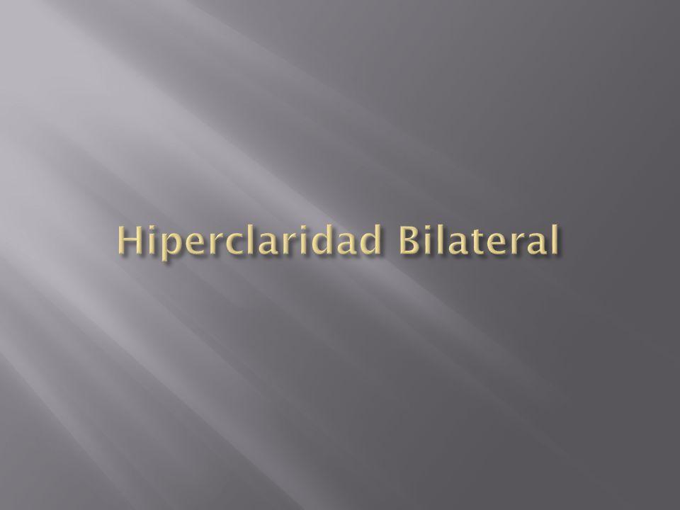 Hiperclaridad Bilateral