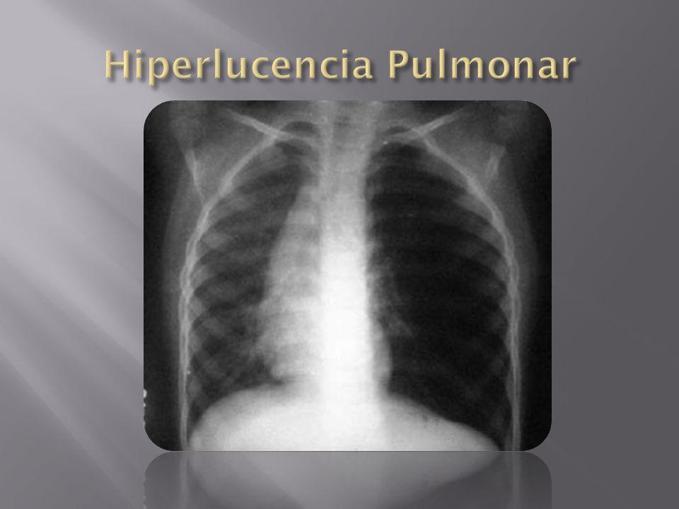 Hiperlucencia Pulmonar
