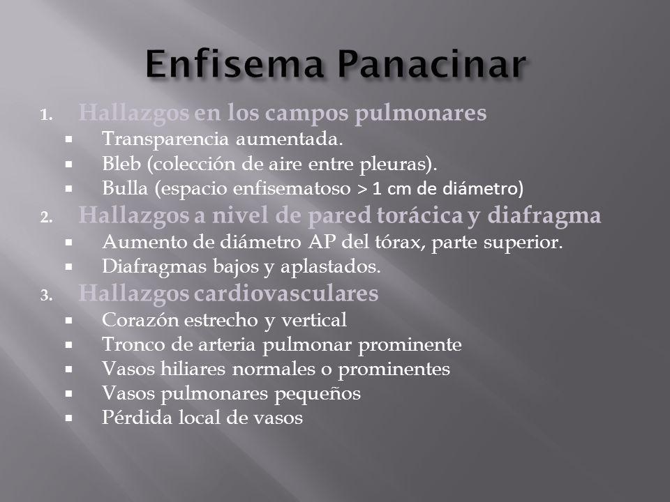 Enfisema Panacinar Hallazgos en los campos pulmonares