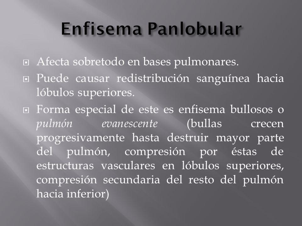 Enfisema Panlobular Afecta sobretodo en bases pulmonares.