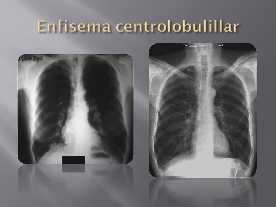 Enfisema centrolobulillar
