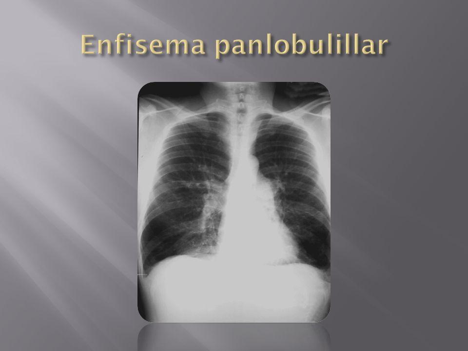 Enfisema panlobulillar