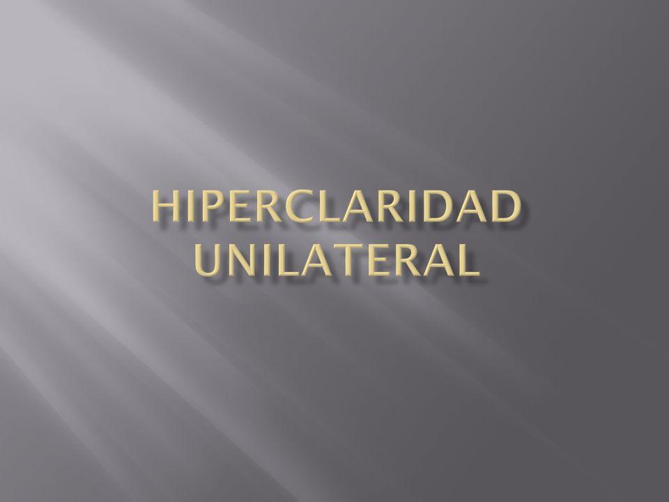 Hiperclaridad Unilateral