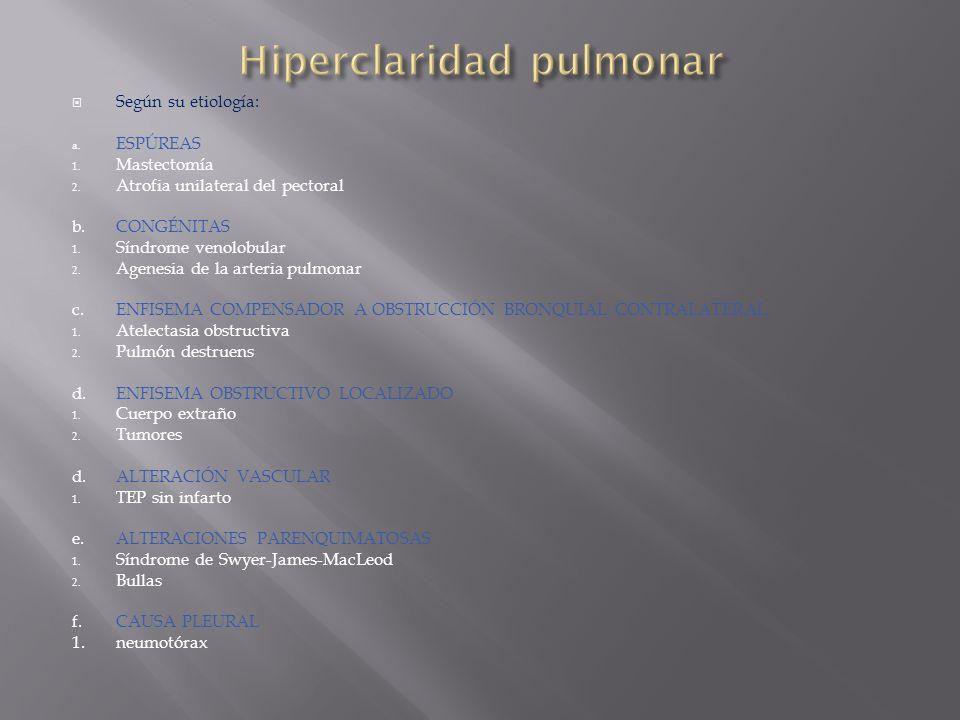Hiperclaridad pulmonar