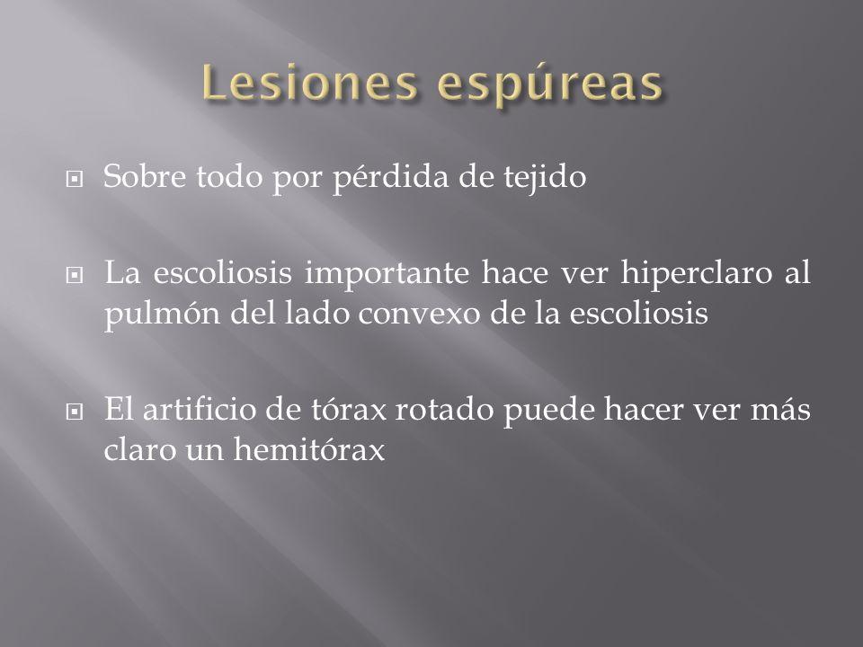 Lesiones espúreas Sobre todo por pérdida de tejido