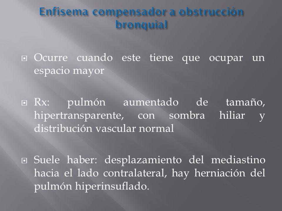 Enfisema compensador a obstrucción bronquial