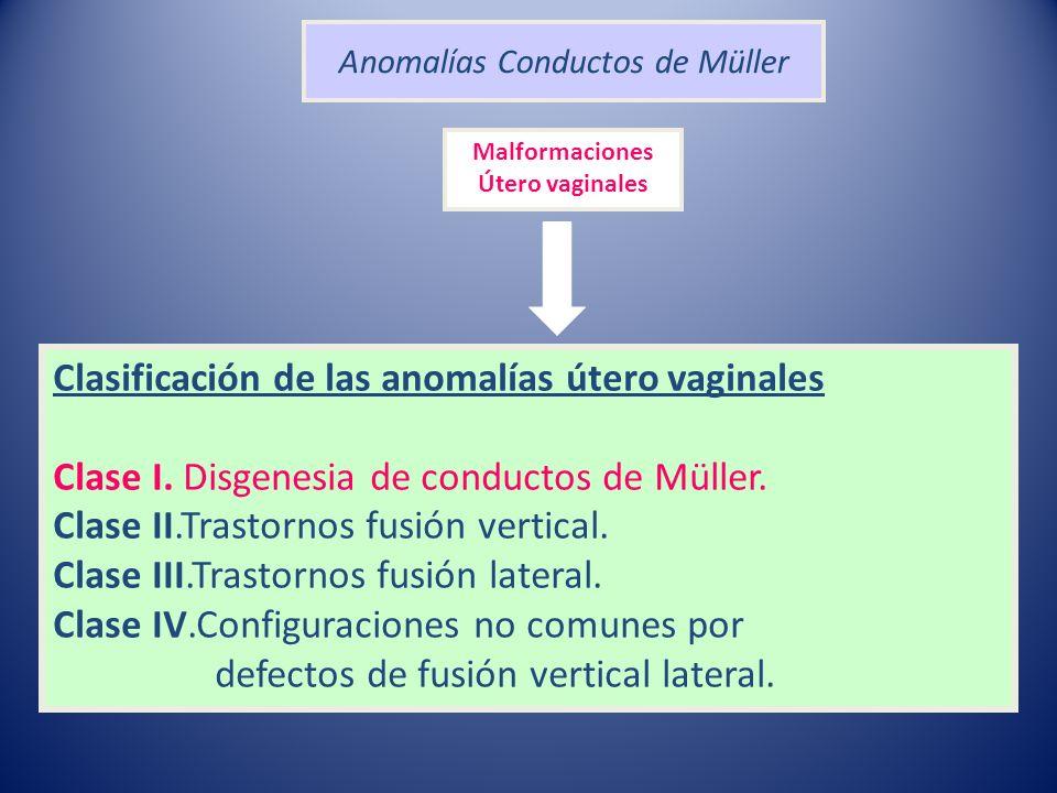 Anomalías Conductos de Müller