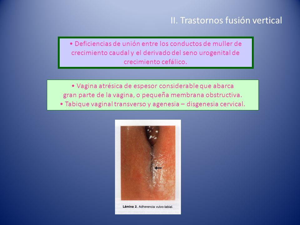 II. Trastornos fusión vertical
