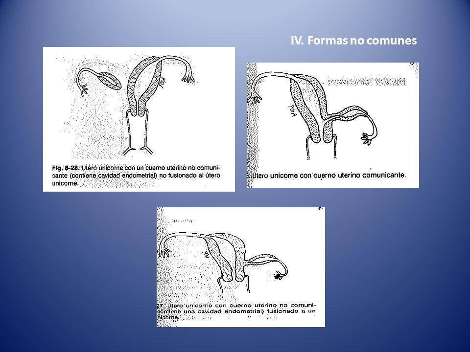 IV. Formas no comunes