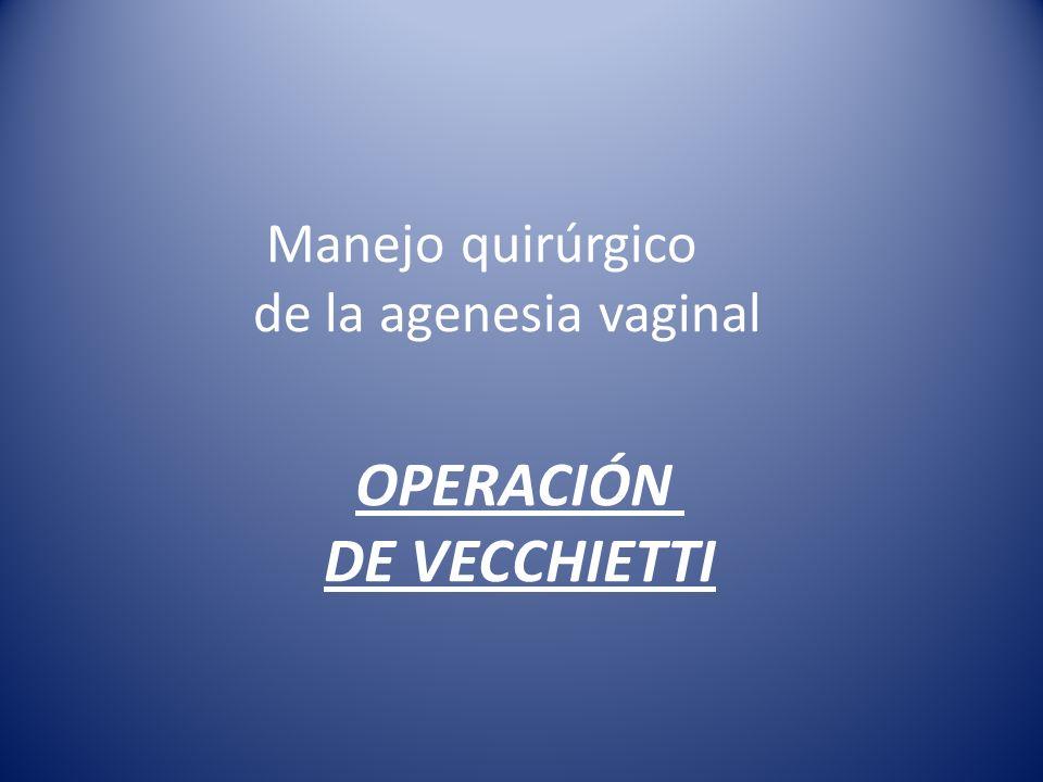 OPERACIÓN DE VECCHIETTI