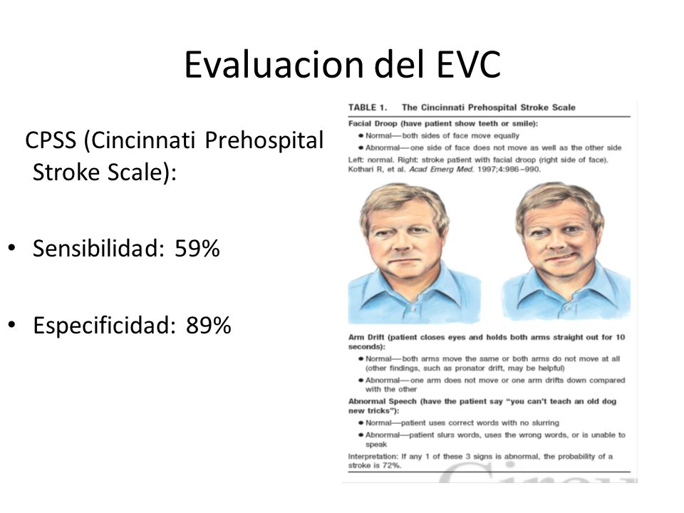 Evaluacion del EVC CPSS (Cincinnati Prehospital Stroke Scale):