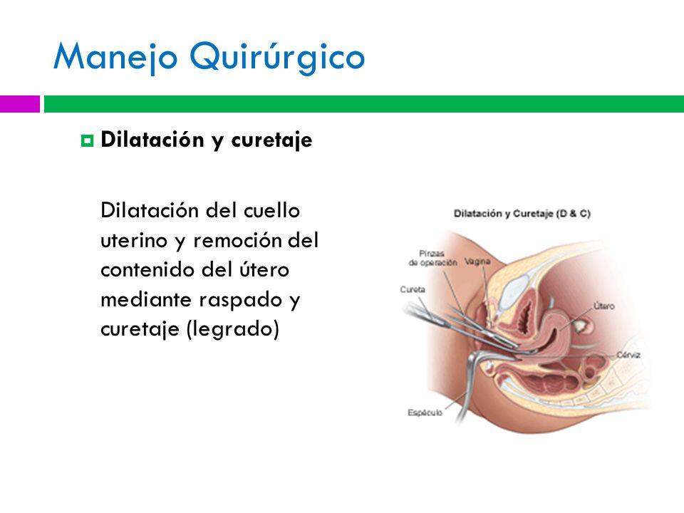 Manejo Quirúrgico Dilatación y curetaje