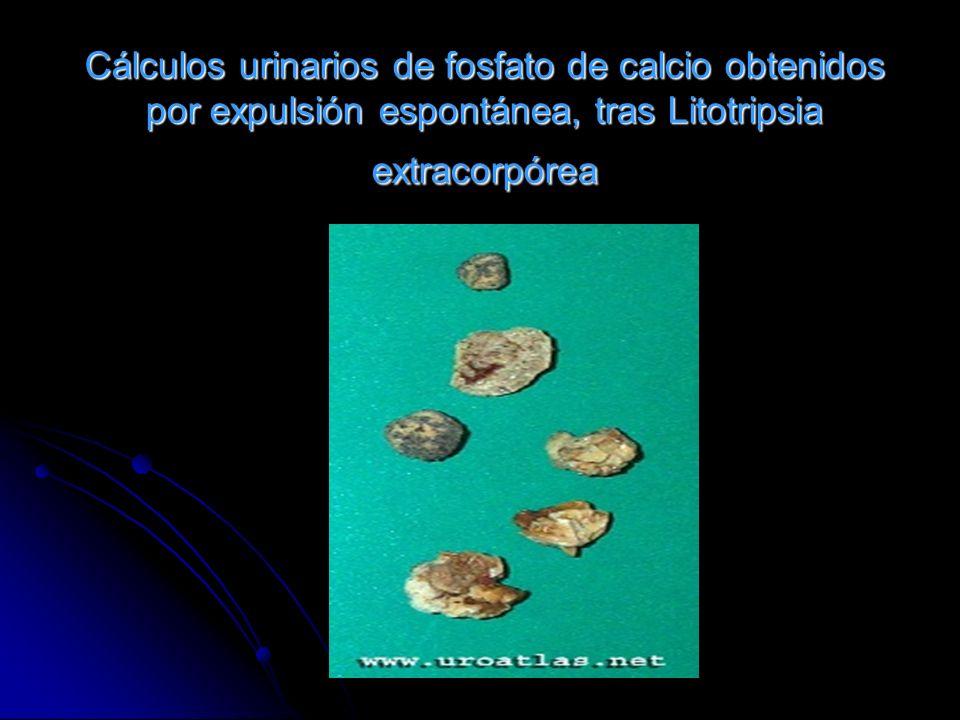 Cálculos urinarios de fosfato de calcio obtenidos por expulsión espontánea, tras Litotripsia extracorpórea