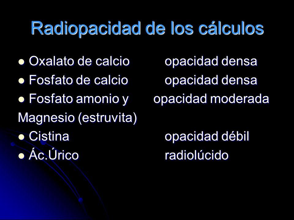 Radiopacidad de los cálculos