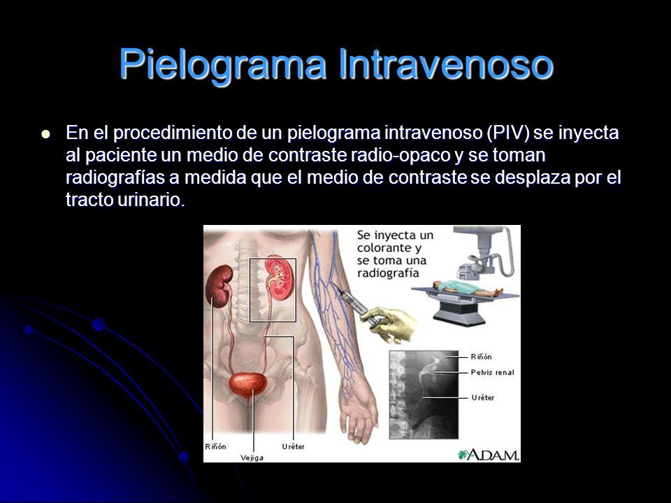 Pielograma Intravenoso