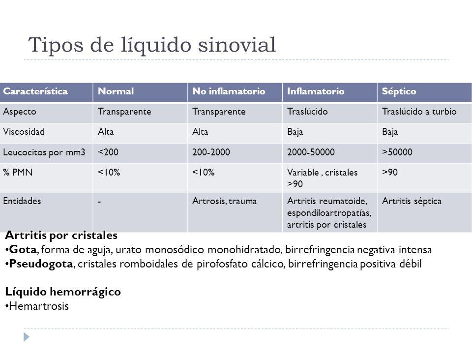 Tipos de líquido sinovial