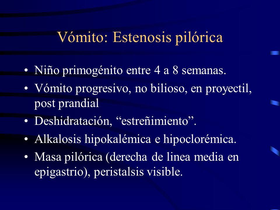 Vómito: Estenosis pilórica