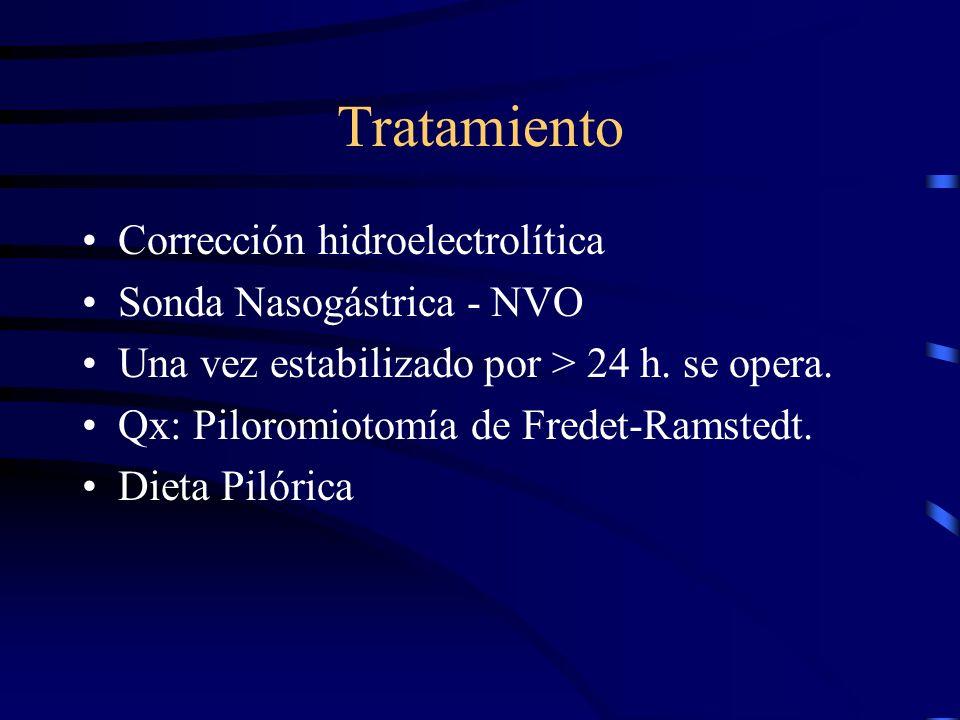 Tratamiento Corrección hidroelectrolítica Sonda Nasogástrica - NVO