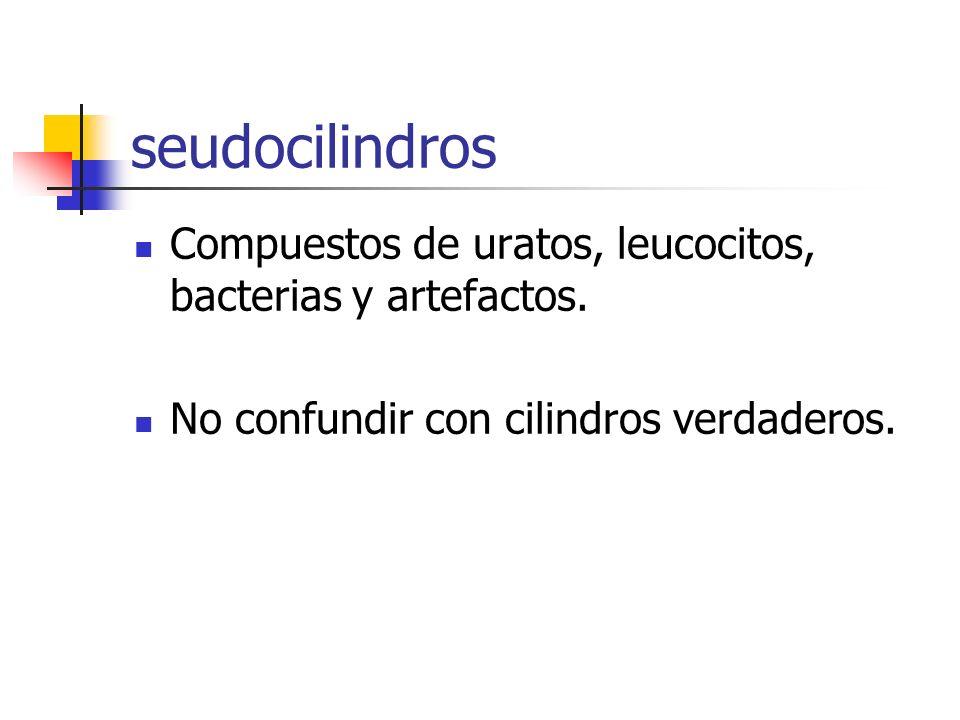 seudocilindros Compuestos de uratos, leucocitos, bacterias y artefactos.