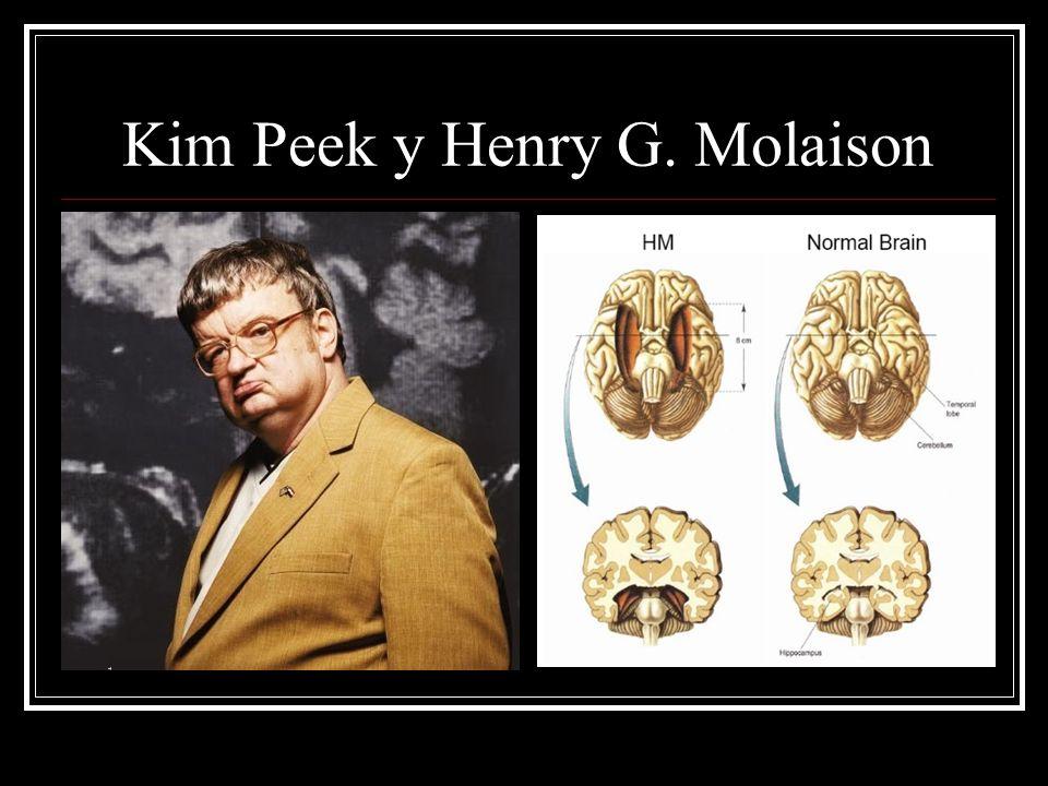 Kim Peek y Henry G. Molaison