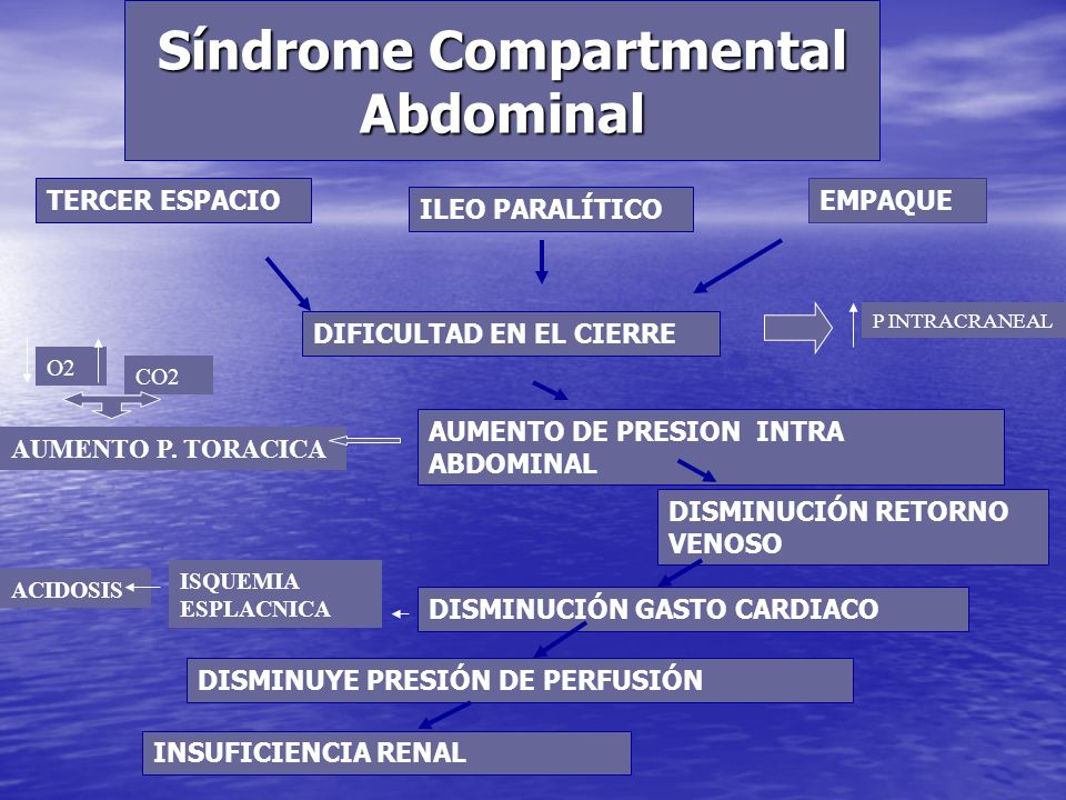 Síndrome Compartmental Abdominal
