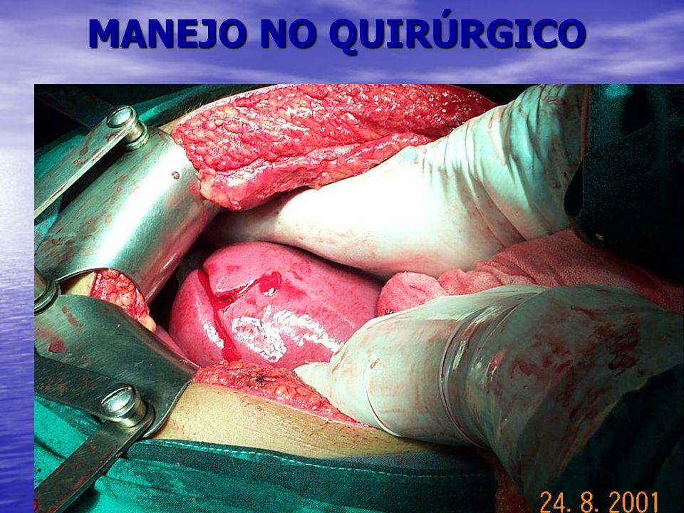 MANEJO NO QUIRÚRGICO
