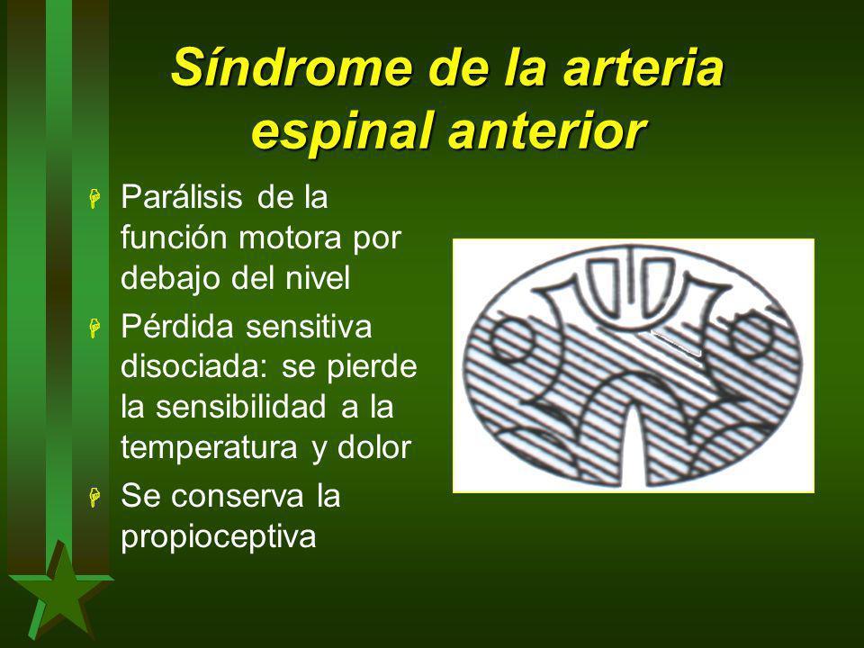 Síndrome de la arteria espinal anterior