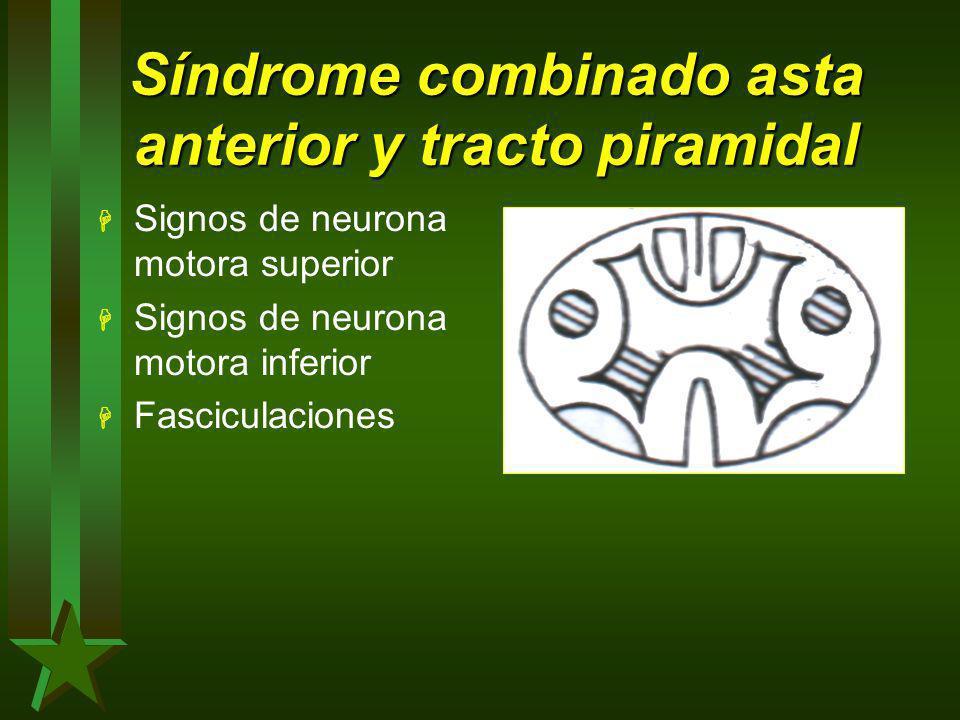 Síndrome combinado asta anterior y tracto piramidal