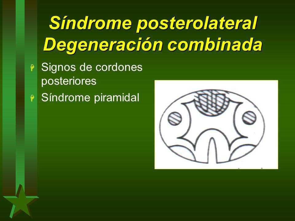 Síndrome posterolateral Degeneración combinada