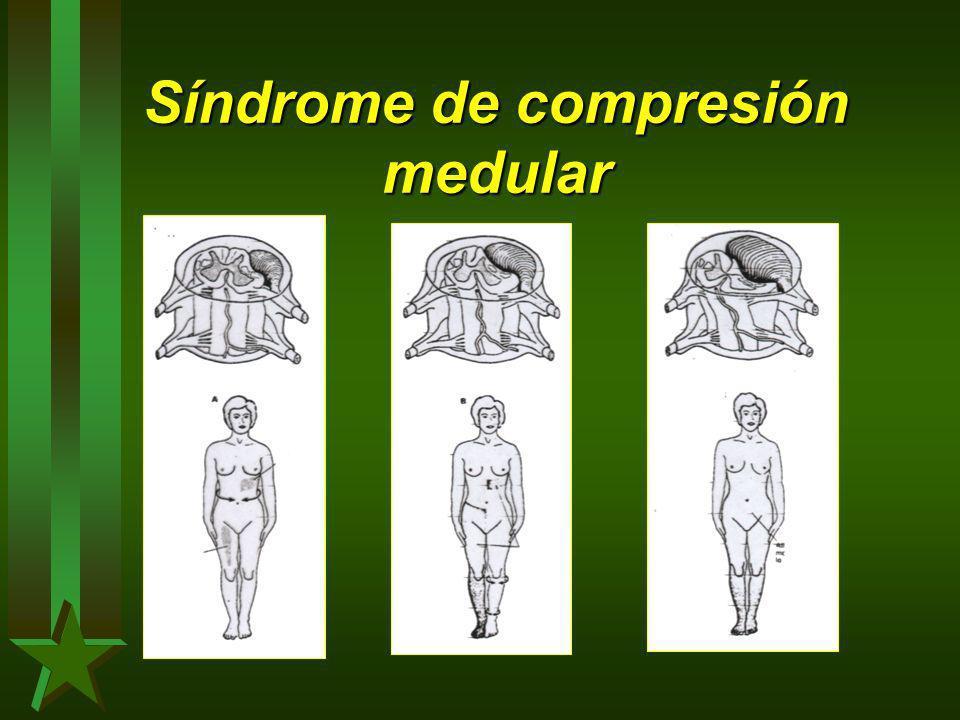 Síndrome de compresión medular