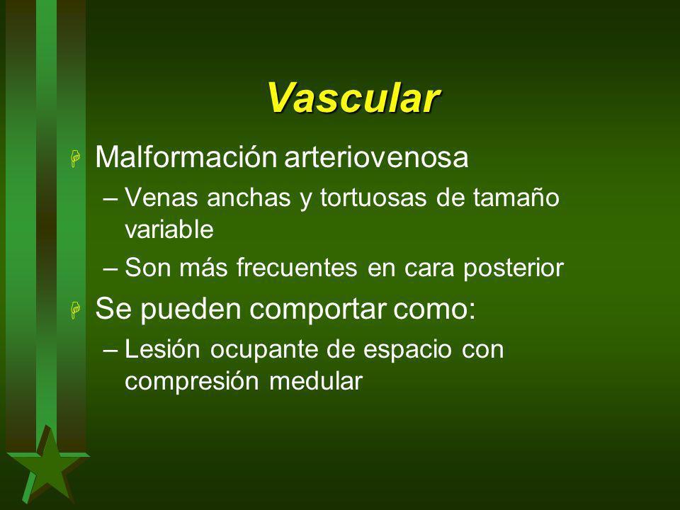 Vascular Malformación arteriovenosa Se pueden comportar como: