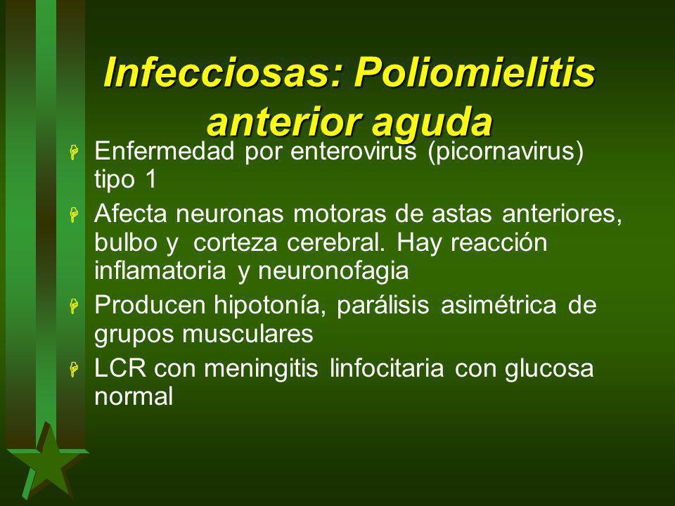 Infecciosas: Poliomielitis anterior aguda