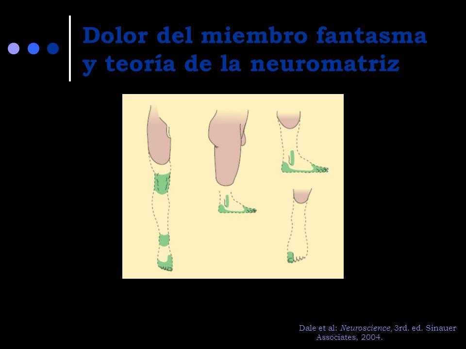 Dolor del miembro fantasma y teoría de la neuromatriz