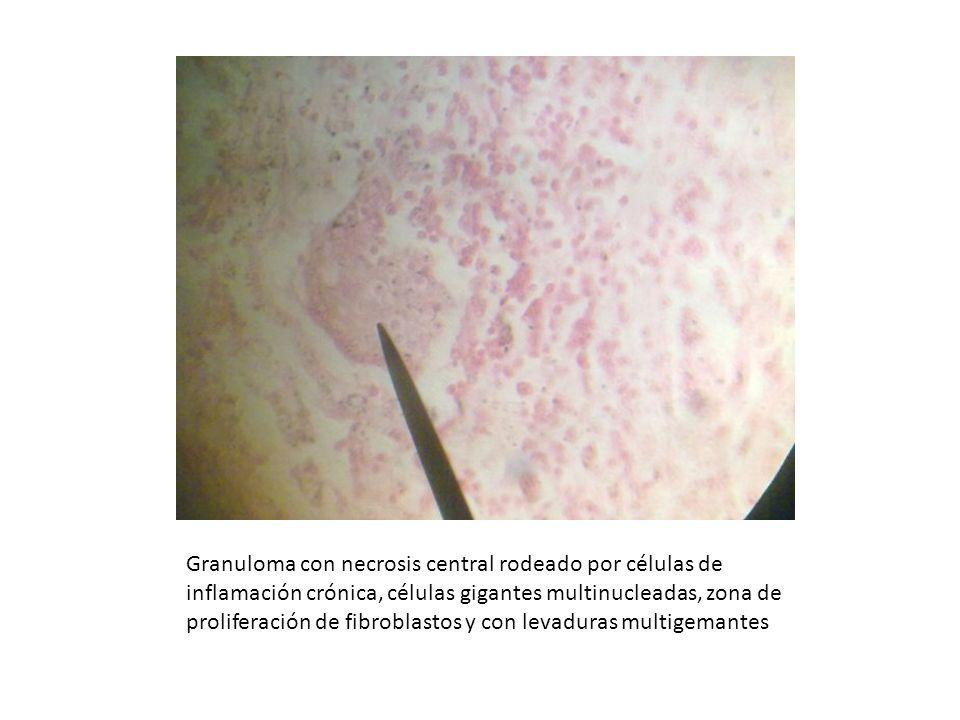 Granuloma con necrosis central rodeado por células de inflamación crónica, células gigantes multinucleadas, zona de proliferación de fibroblastos y con levaduras multigemantes