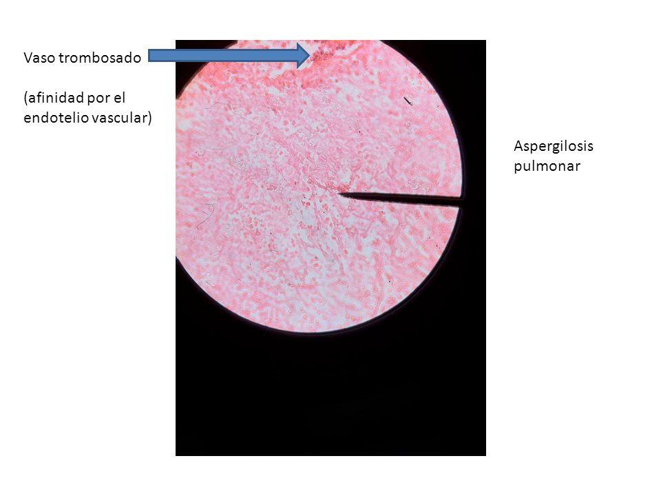 Vaso trombosado (afinidad por el endotelio vascular) Aspergilosis pulmonar