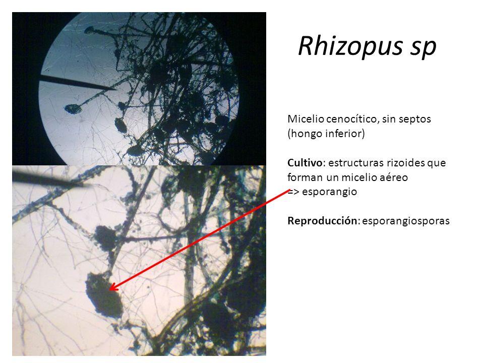 Rhizopus sp Micelio cenocítico, sin septos (hongo inferior)