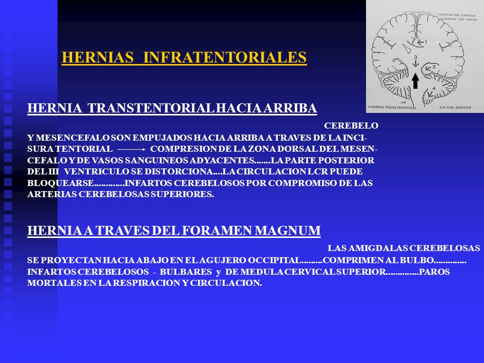 HERNIAS INFRATENTORIALES