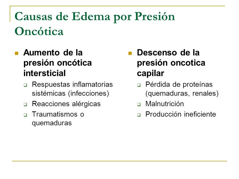 Causas de Edema por Presión Oncótica