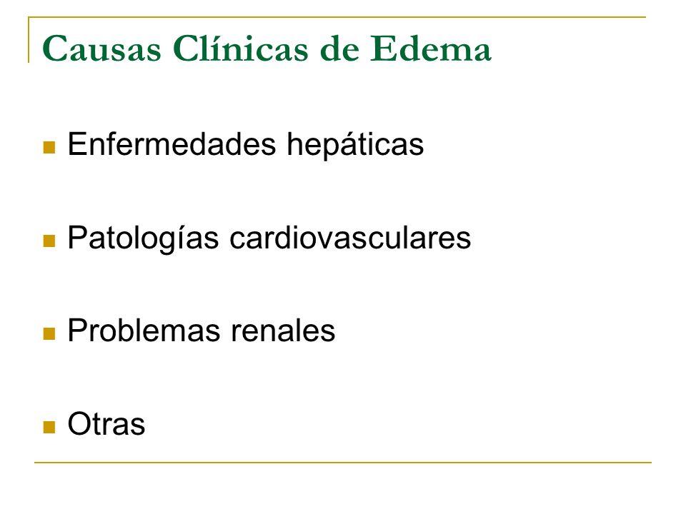 Causas Clínicas de Edema