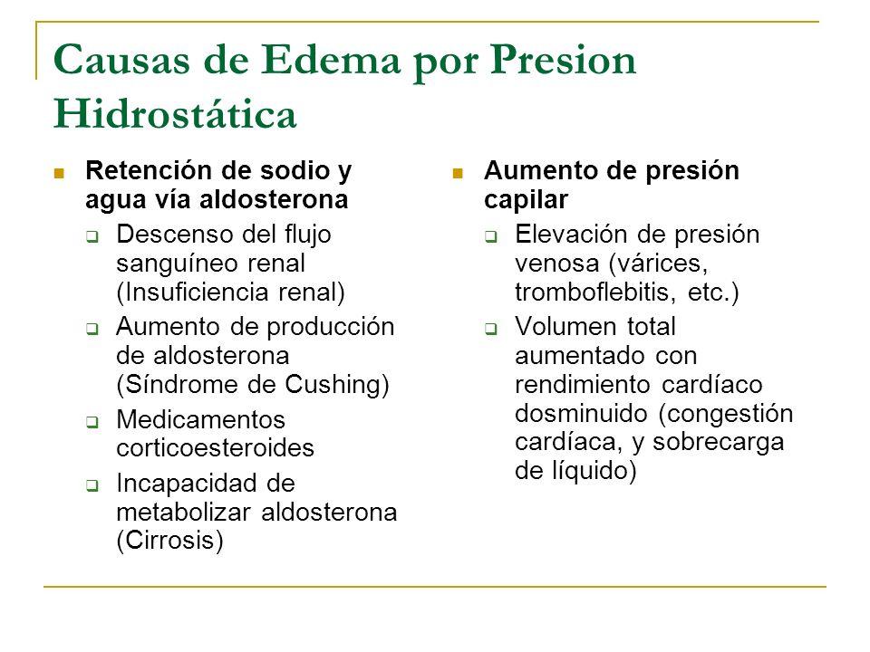 Causas de Edema por Presion Hidrostática