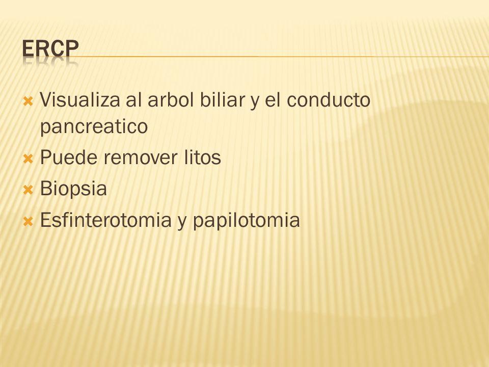 ERCP Visualiza al arbol biliar y el conducto pancreatico