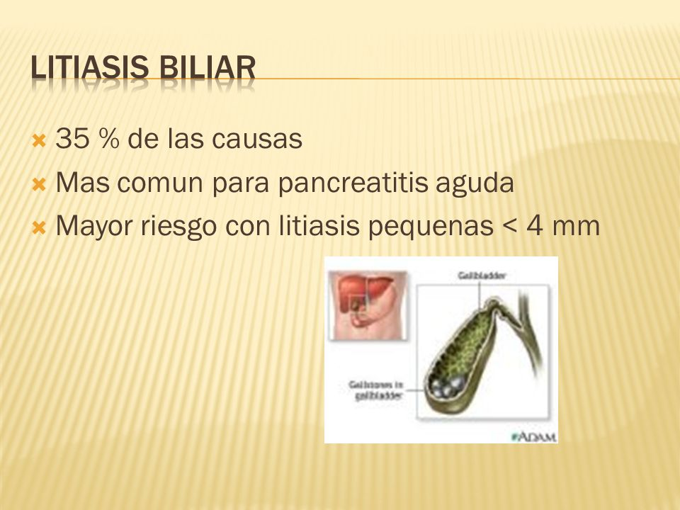 Litiasis Biliar 35 % de las causas Mas comun para pancreatitis aguda