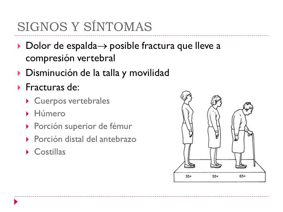 SIGNOS Y SÍNTOMAS Dolor de espalda posible fractura que lleve a compresión vertebral. Disminución de la talla y movilidad.