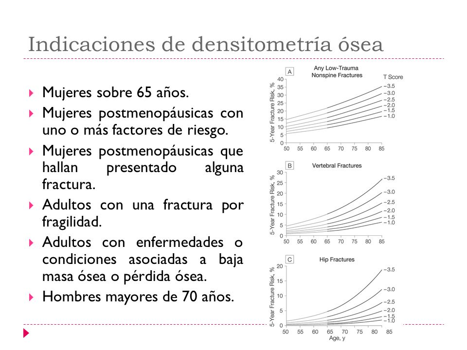 Indicaciones de densitometría ósea