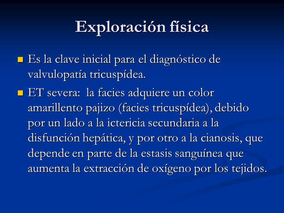 Exploración física Es la clave inicial para el diagnóstico de valvulopatía tricuspídea.