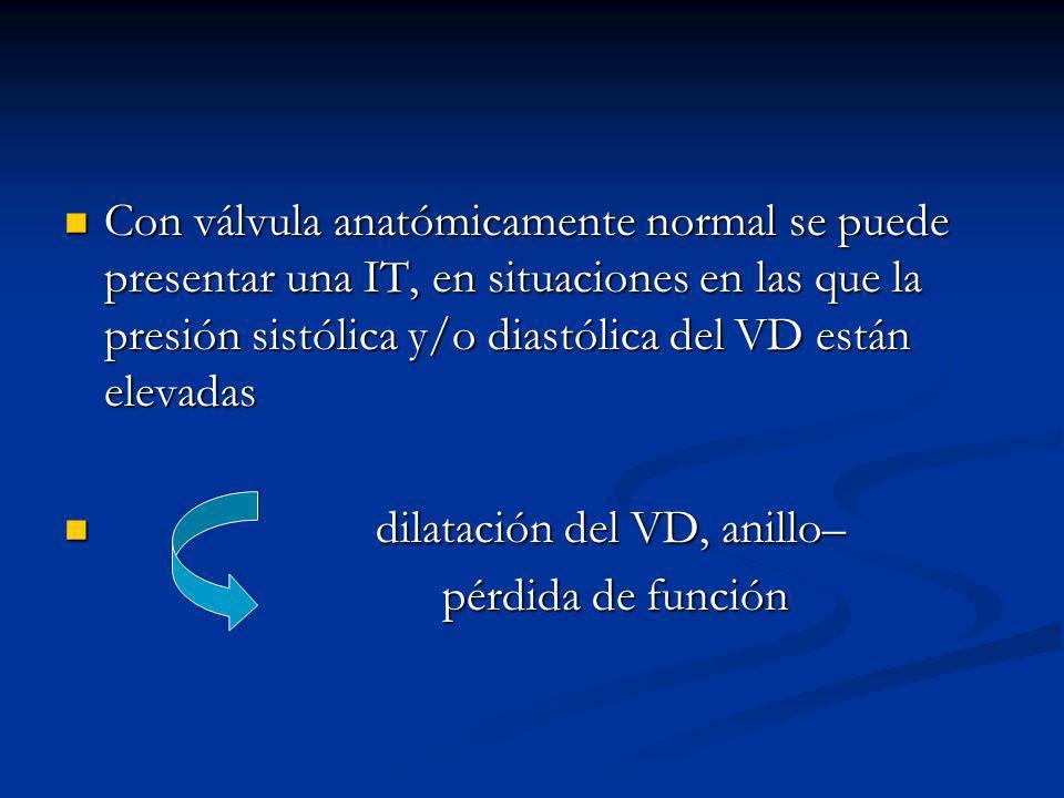 Con válvula anatómicamente normal se puede presentar una IT, en situaciones en las que la presión sistólica y/o diastólica del VD están elevadas